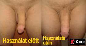 lelassítja a pénisz növekedését akkora, mint egy férfi hímvesszője merevedéssel